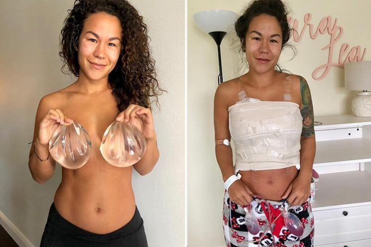 Fitness blogger claims breast implants 'caused body odour, acne, hair loss and weight gain'
