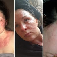 Mum-of-one left scarred from severe burns after suffering allergic reaction to hair dye