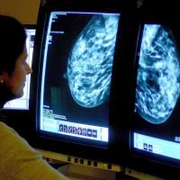 Four out of five women at high risk of breast cancer do not want to take tamoxifen to prevent the disease because of side-effects
