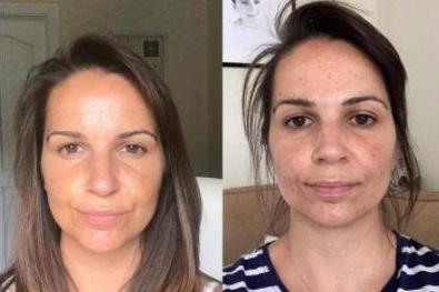 Viola Skin's £15 Vitamin C anti-ageing serum has more than 2,500 five-star reviews online… and the photos speak for themselves
