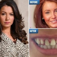 Botched dental work ended former Miss England star's pageant career