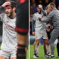 Adam Lallana left covered in blood as Liverpool star in nasty clash of heads with Bournemouth midfielder Jefferson Lerma