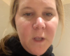 Amy Schumer's Nausea Struggles Continue 'Deep in My Second Trimester' as She Posts Vomit Video