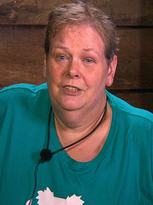 I'm A Celebrity: Anne Hegerty SHOCKS with dramatic weight loss