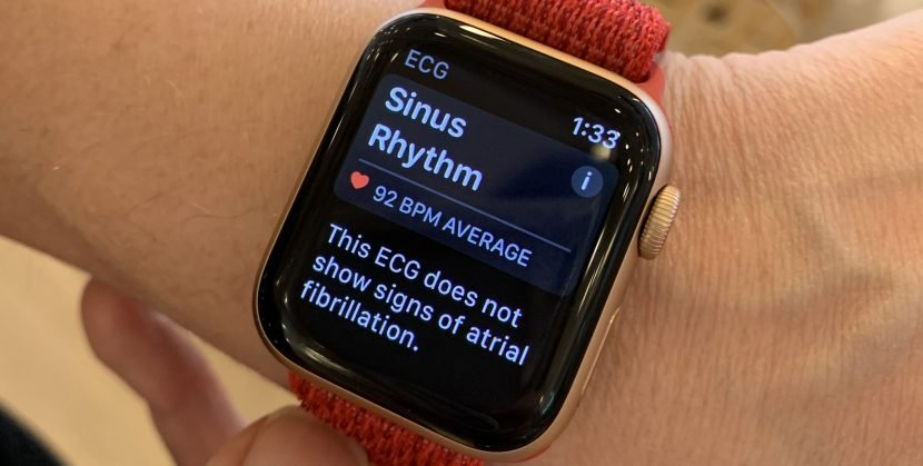 'I Tried The Apple Watch's New ECG Feature Before Anyone Else'