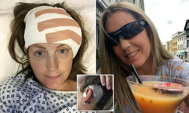 Woman tormented by condition that means she hears eyeballs moving