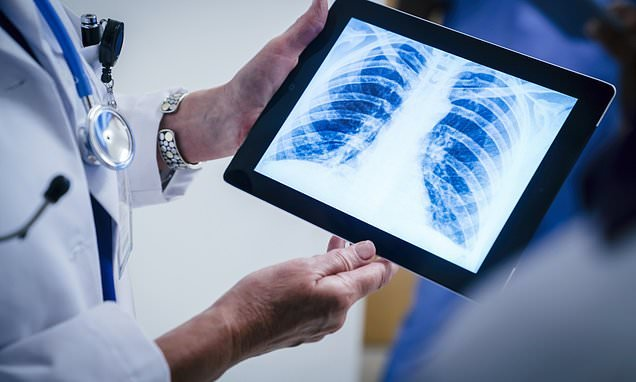 AI powered X-ray scans to slash waiting times for expert diagnosis