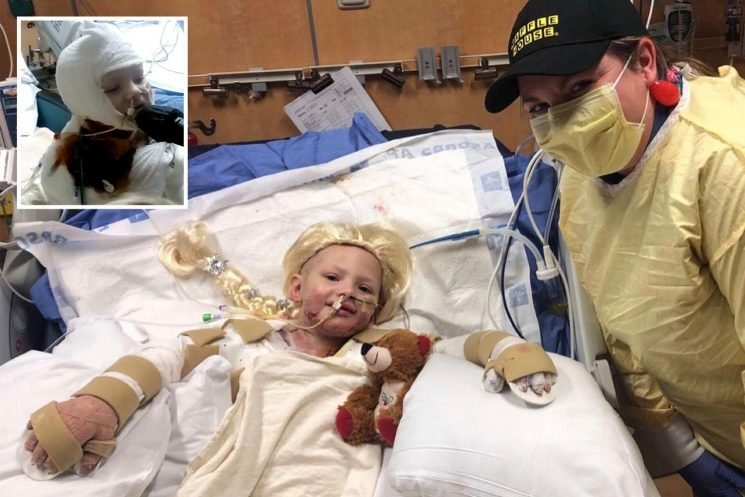 Girl, 5, says love of Elsa from Frozen helped her survive 70% burns after accidentally setting herself on fire with Zippo lighter
