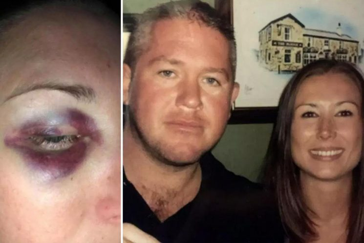 Horrific injuries of mum at the hands of her jealous husband who punched and dragged her towards chip fryer as attacker walks free
