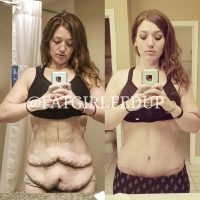 Weight Loss Influencer Lexi Reed Reflects on Her Skin Removal Surgery Progress: 'Love Yourself'