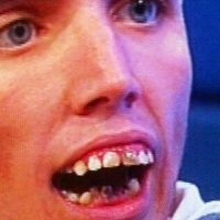 Seven sets of teeth most slated by Jeremy Kyle Show viewers revealed