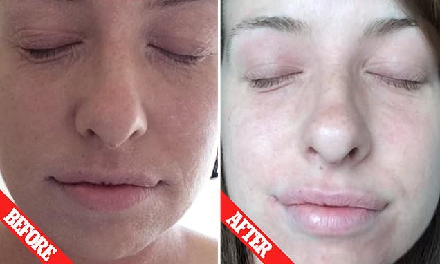 Woman who has had eczema for 27 years finds cure using TWO products