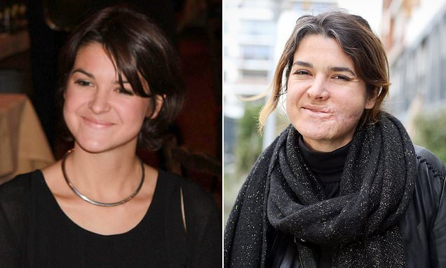 Woman, 37, shot in the face in the 2015 Bataclan terror attack speaks