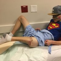 Teen Undergoes Unique Surgery Using His Foot as a Knee After Losing Most of His Leg to Cancer