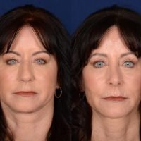 62-Year-Old Identical Twins Get Matching Facelifts: 'We Do Everything Together'