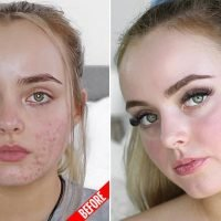 Teenager, 19, reveals how she FINALLY got rid of her painful acne