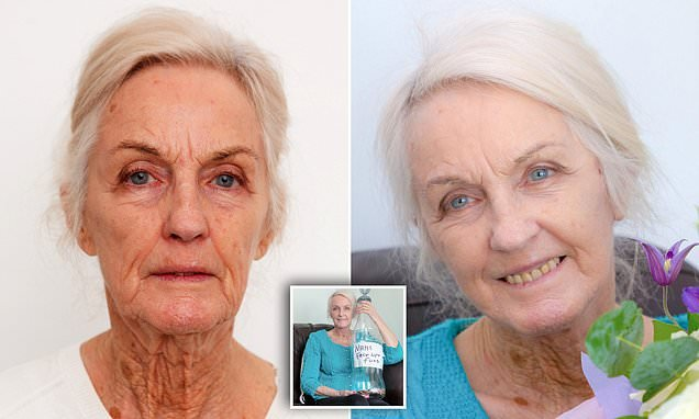 Great grandmother calls her facelift results a 'dream come true'