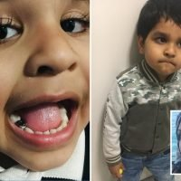 My four-year-old son's teeth went black and rotted after he refused to brush them – now he's got three crowns fitted on his baby molars