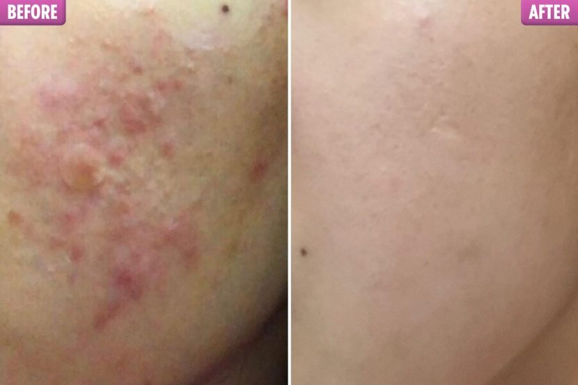 Girl warns acne sufferers NOT to exfoliate as she transforms her inflamed skin with gentle skincare regime