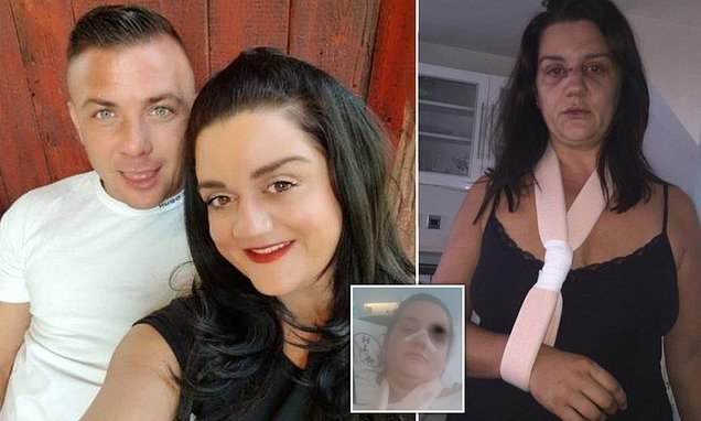 Woman unable to watch Robbie Williams due to abusive ex's resemblance