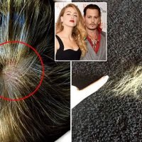Amber Heard's clumps of hair, hole in her scalp after fight with Depp
