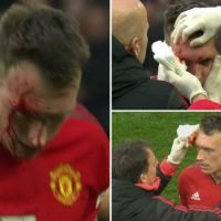 Phil Jones left with gruesome gash and blood pouring from forehead after nasty clash