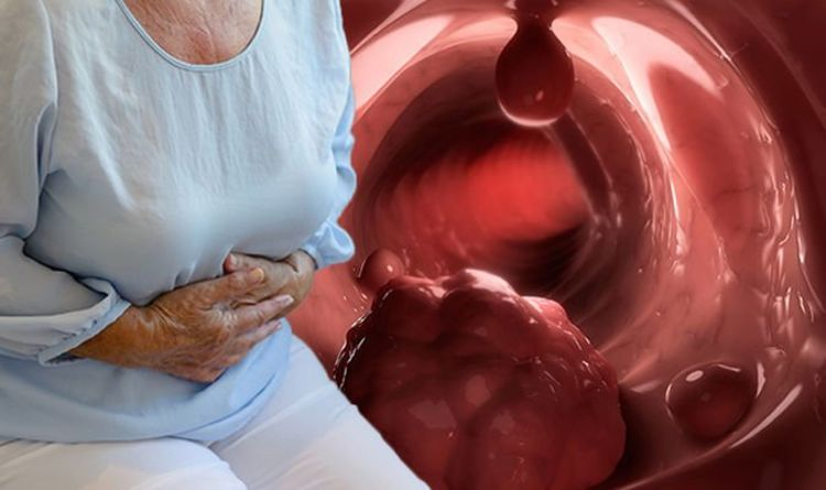 Bowel cancer: Expert warns on being clear about the signs and symptoms of bowel cancer